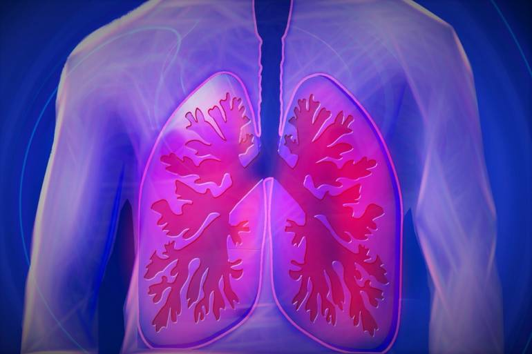 pulmon humano scanner